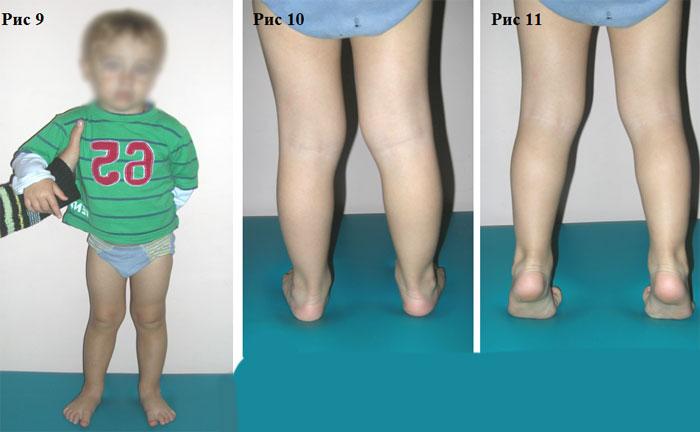 Почему во время массажа одна нога больше другой